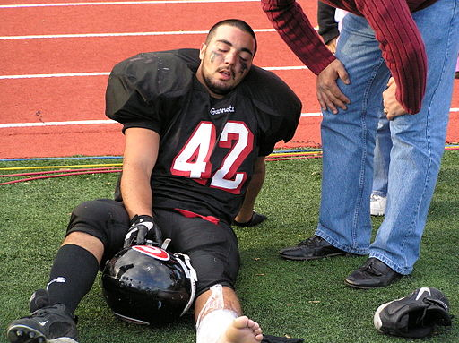 Due to the constant head trauma that football players experience, they are at risk for developing CTE in the future. Anthony22 at English Wikipedia, CC BY-SA 3.0 , via Wikimedia Commons